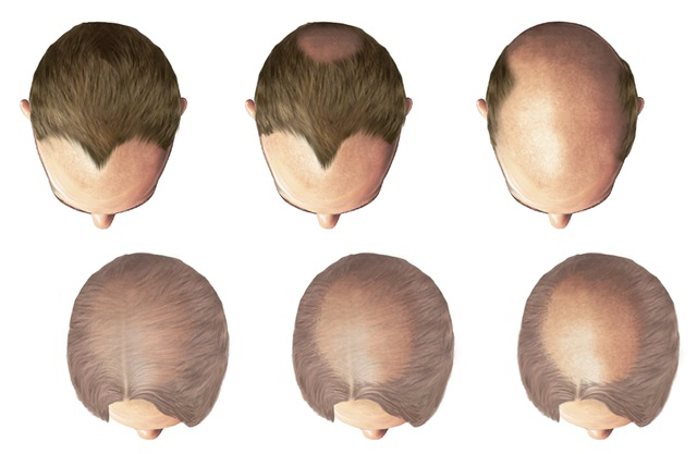 male type baldness